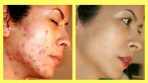 prof. Dr. Ikram Ullah Khan, best dermatologist in islamabad, top dermatologist in islamabad, Skin doctor, laser hair removal,dermatologist near me. acne and acne scars treatment