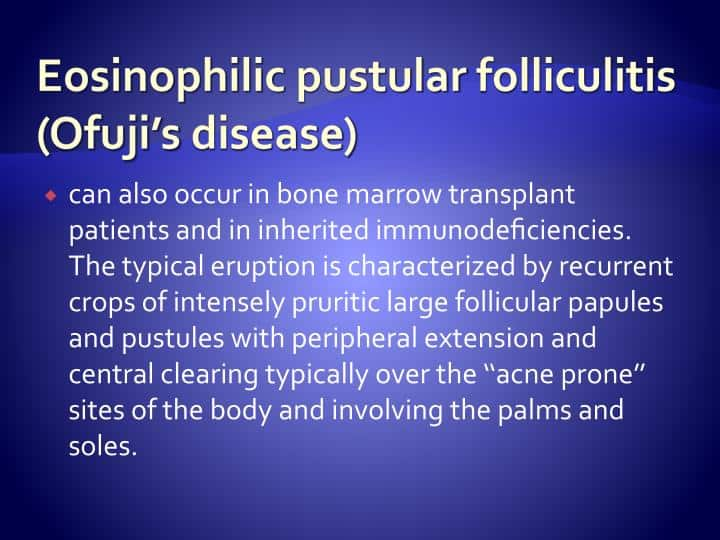 Best Skin Specialist Talks About Eosinophilic Pustular