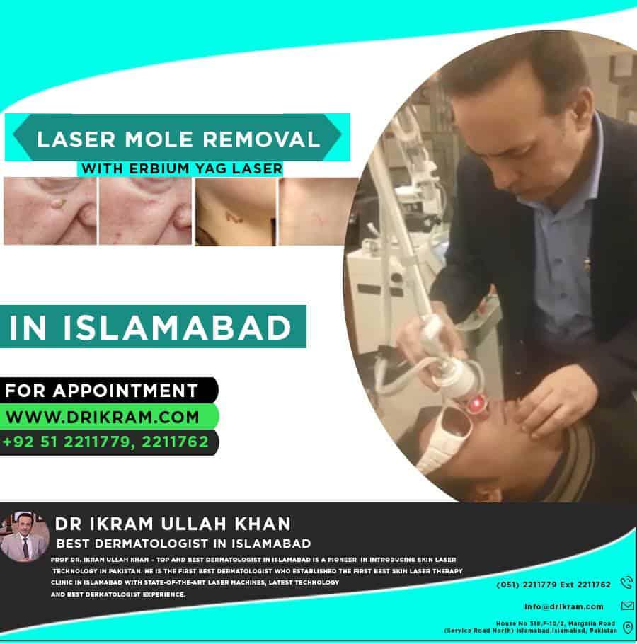 birthmark blemishes Treatment,Best birthmark, Mole Removal treatment , dr ikram ullah khan, Skin Tags treatment in Pakistan,port wine stains