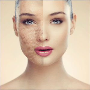 acne and acne scars treatment, dr ikram ullah khan, skin specialist in islamabad, get rid of pimple marks with laser