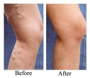 Leg Veins Therapy In Islamabad